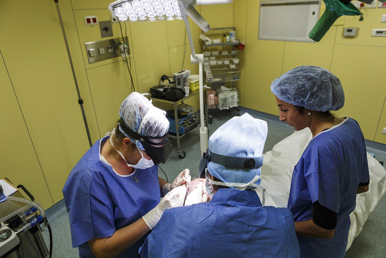 Chirurgie calvitie